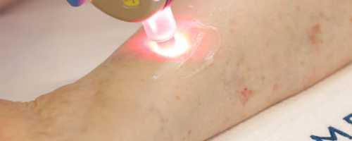 Láser Vasculight para arañas vasculares en Barcelona y Badalona